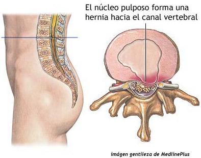 Hernia discal, como aliviar síntomas