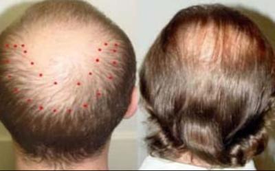 Mesoterapia capilar: Efecto secundario