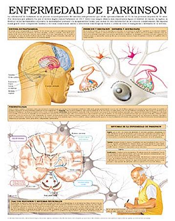 Parkinson y estrés - Buena Salud