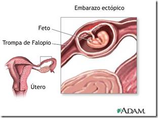 Descubren biomarcadores que podrian detectar embarazos ectopicos