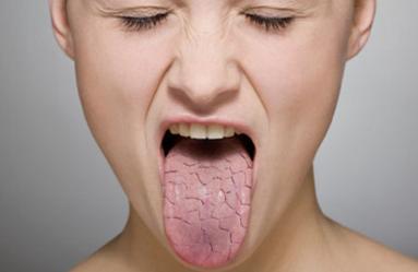 Remedios caseros para la boca reseca