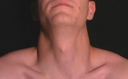 Regulando la función de la tiroides