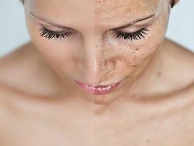 Consejos para aclarar la piel del rostro