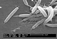 Remedios naturales para la Helicobacter pylori