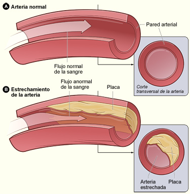 Novedoso estudio para medir la edad real de las arterias