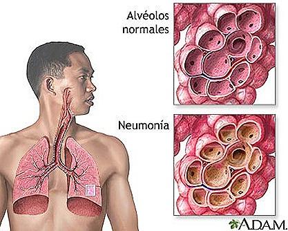 Neumonia| informacion, video