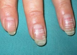 Leuconiquia: manchas blancas en las uñas