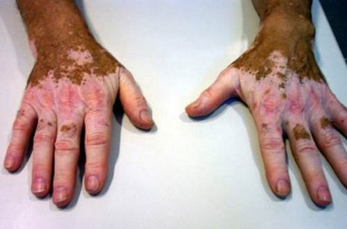 En el cuerpo había unas manchas rojas de pigmento
