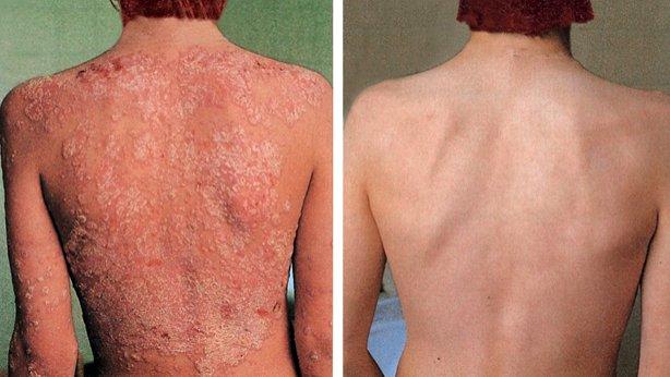 La psoriasis y atopichesky la dermatitis de la distinción