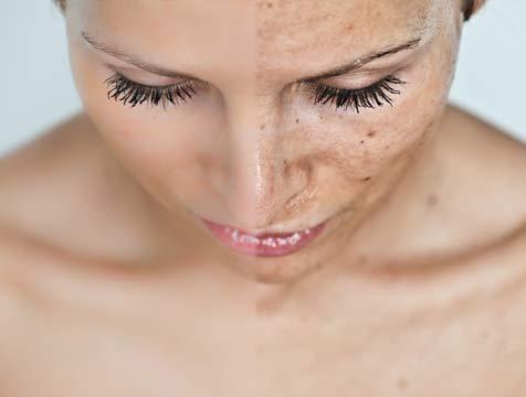 Elimina las manchas de la cara en tres sesiones