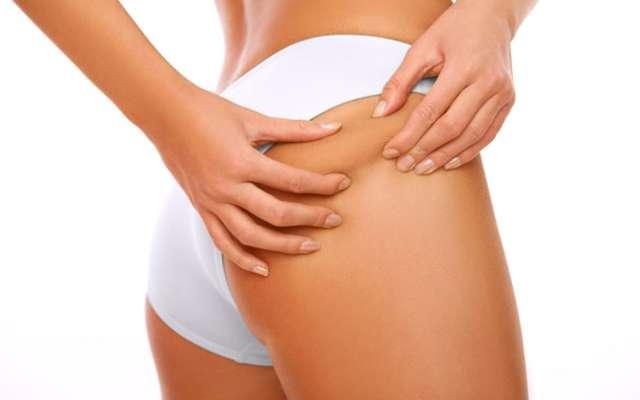 consejos-para-reducir-la-celulitis