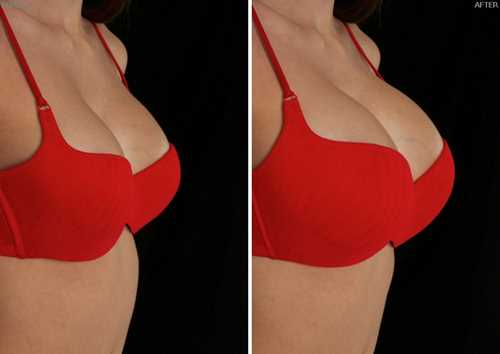 implante de pecho