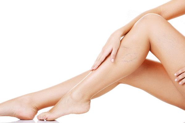 Celulitis en las piernas como eliminarla