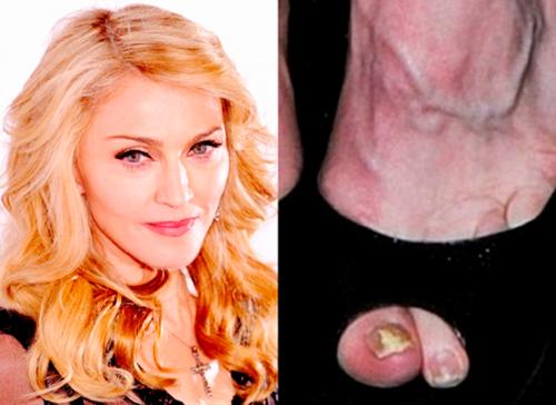 madonna presenta fragancia con hongo en las unas de los pies