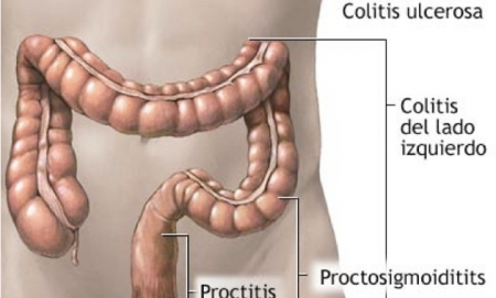 Remedios caseros para colitis2.jpg
