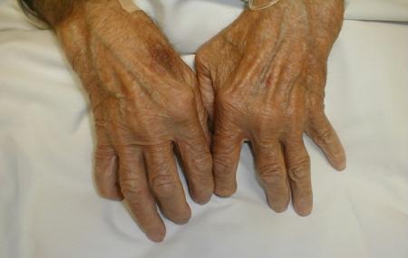 ejercicios-artritis.jpg