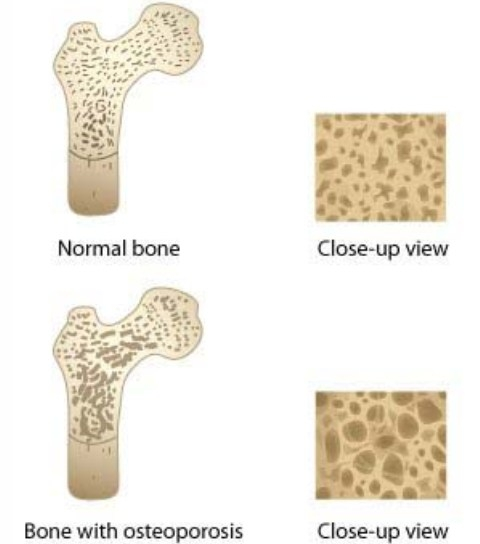 prevenir osteoporosis 3.jpg