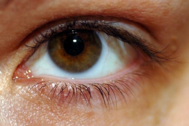 remedios_caseros_inflamacion_ocular2.jpg