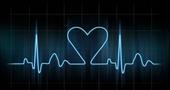 Síntomas de taquicardia