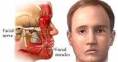 Paralisis facial